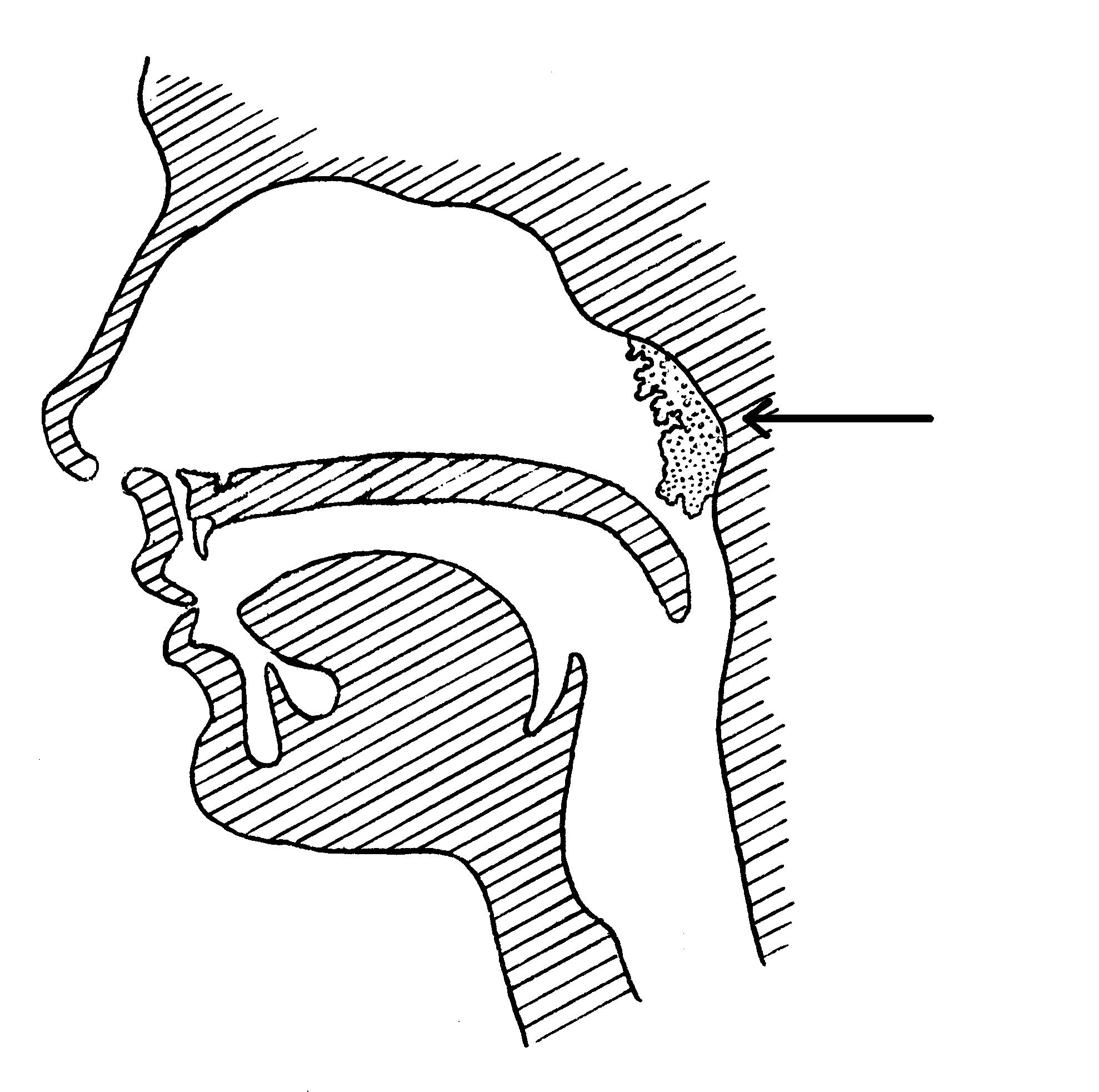 Adenotomia (usunięcie migdałka gardłowego)
