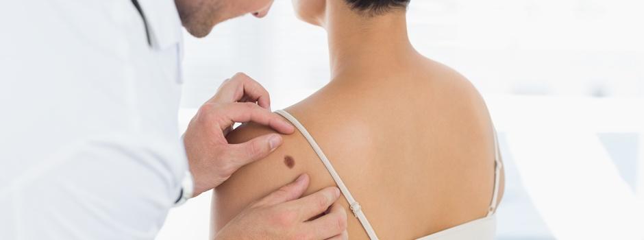 Usunięcie znamion skórnych (z plastyką skóry) z badaniem histopatologicznym