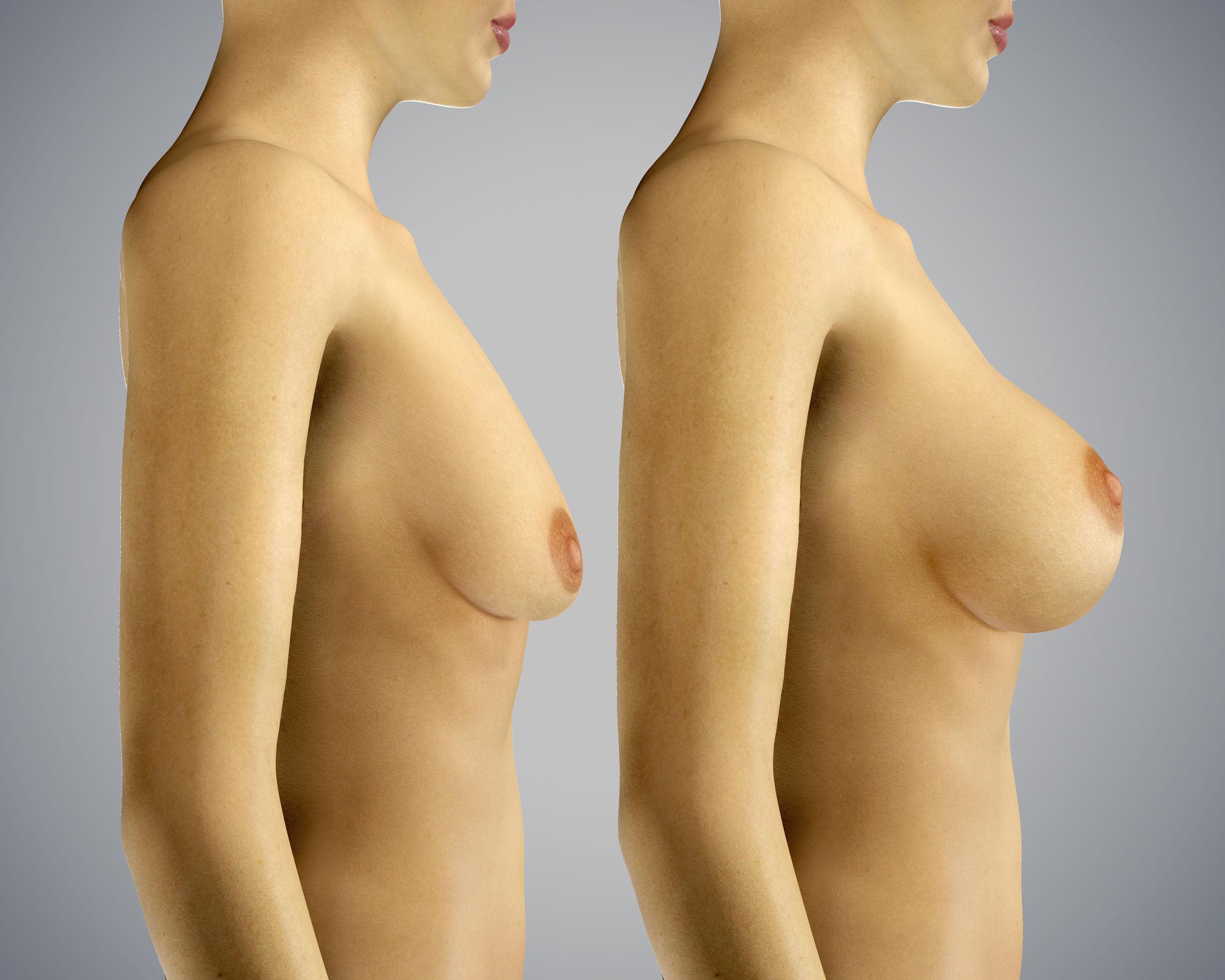 Powiększenie piersi własną tkanką tłuszczową