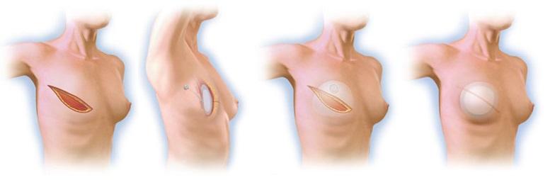 rekonstrukcja piersi po amputacji za pomocą ekspandera 1dayclinic szpital gdańsk