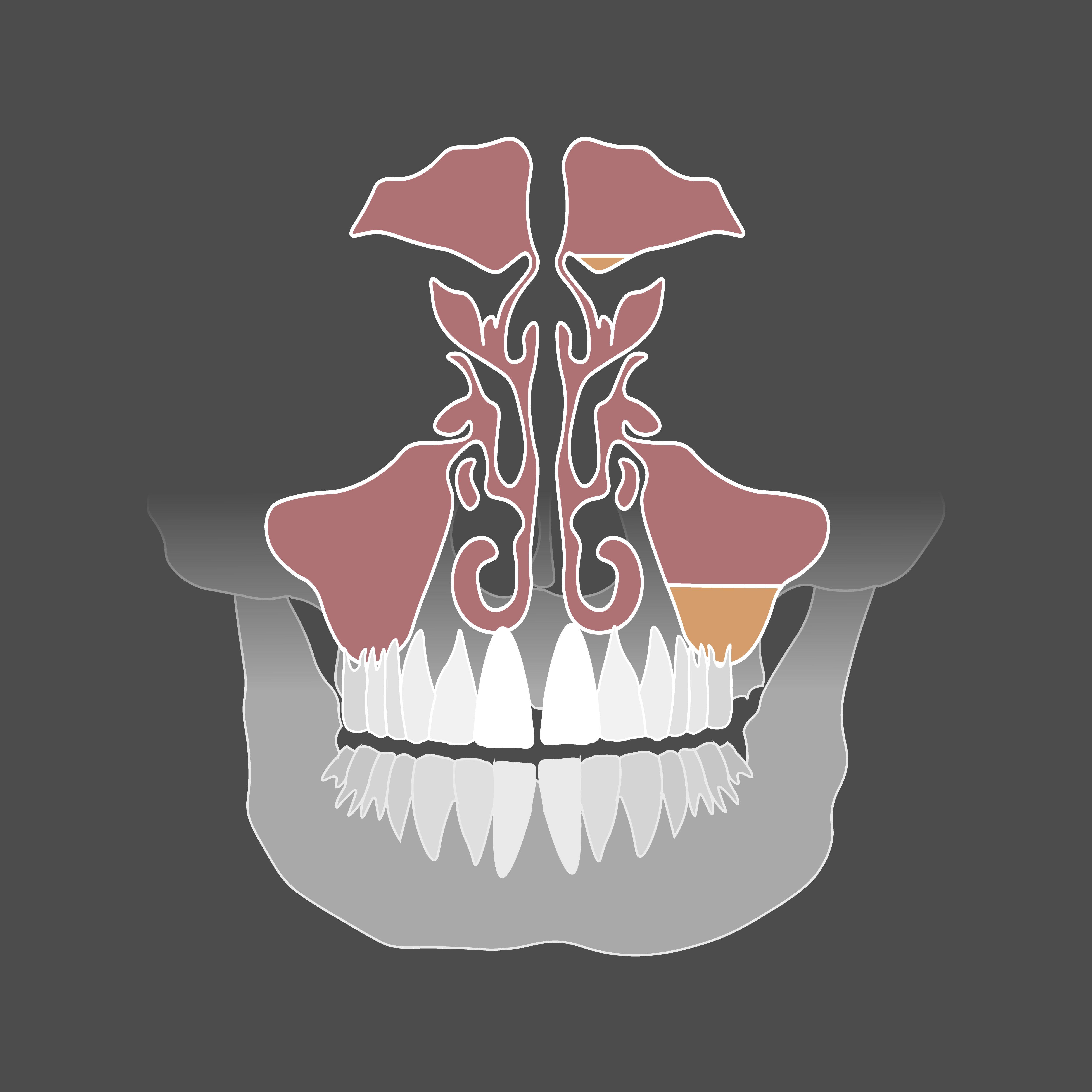 Usunięcie torbieli szczęki lub żuchwy (wyłuszczenie, wyłyżeczkowanie, wycięcie)